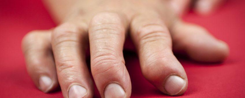 Arthrose ou arthropathie chronique dégénérative