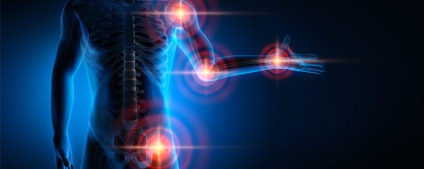 Les symptômes de l'arthrose : comment bien se soigner ?